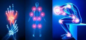 Artrovex gel pret