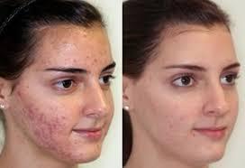 Derminax prospect, functioneaza pentru acnee