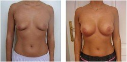 BreastFast pareri forum